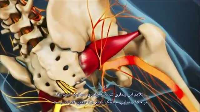 سندروم پریفورمیس (گیر افتادگی عصب سیاتیک)