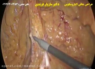 جراحی چاقی لاپاراسکوپیک پارت یکم